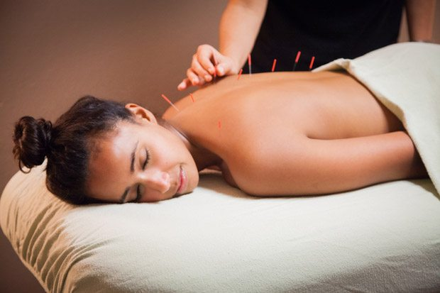 acupuncture_for_fertility